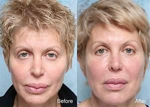 Botox units