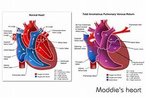 Congenital Heart Defects. Causes, symptoms, treatment ...