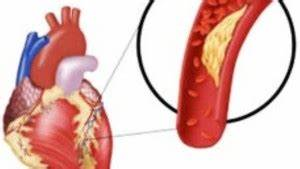 Гипертония при всд лечение