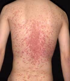 Advanced Skin Wisdom � Pityriasis Rosea Diagnosis and Treatment, NJ ...  Dermatitis Prednisone