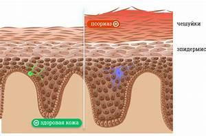 Диадерм крем от псориаза