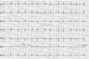 Ecg Rhythms  Basic Ecg Interpretation