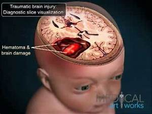 Medical Animation - Traumatic Brain Injury