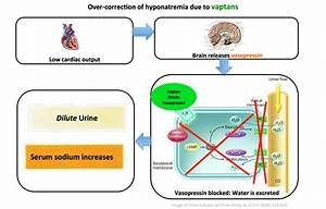 Taking Control Of Severe Hyponatremia With Ddavp