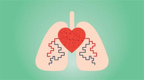 Pulmonary Hypertension Symptoms Ph Treatment Signs Causes