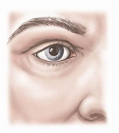 Eyelid Eye Anatomy Xray Finished Experts Upper