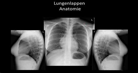 radiologie des thorax  lernen mit lecturio