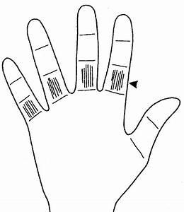 Как вывести бородавки на руке у ребёнка