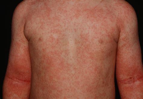 Eczema Rash Atopic Dermatitis Pictures To Pin On Pinterest