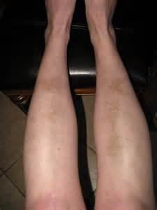Lupus Bruising On Legs