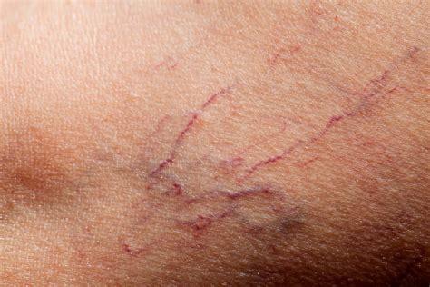 How To Erase And Prevent Broken Capillaries Readers