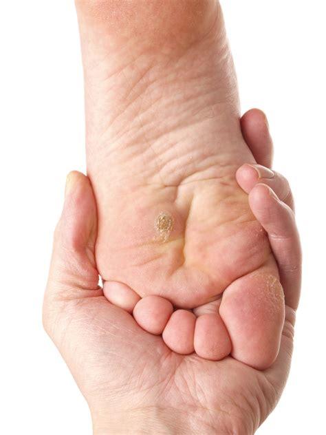 planters wart on toe plantar warts treatment experienced perth foot surgeon