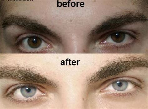 surgical eye color change how to change your eye color naturally permanently with