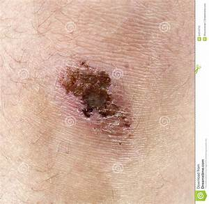 scraped knee infection