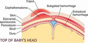 Subgaleal Hematoma In Newborn