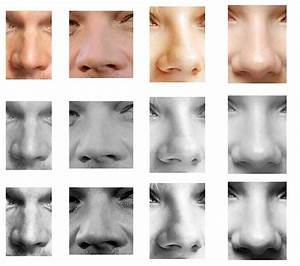 Image Gallery nose types