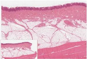 The Outer Layer Of Cells In This Micrograph Is The