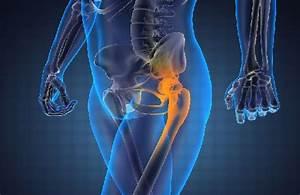 Что делать если после тренировок болят суставы