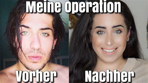 meine gesichts operation fotos jolina mennen youtube