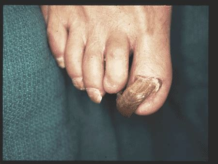 fungal nail infections treating  head  toe