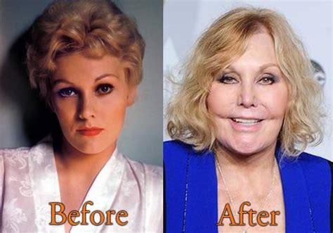 foto de Kim Novak Plastic Surgery Before After Breast Implants