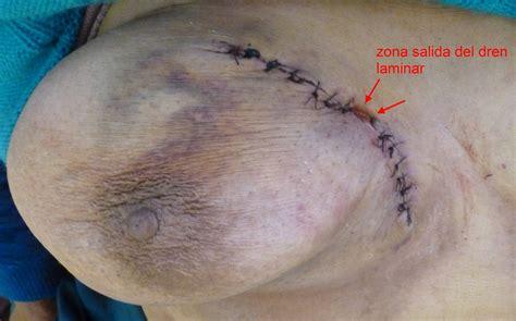 Revision Casos De Cirugia General Absceso Mama Derecha En