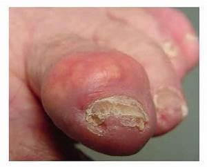 Characteristics Of Gout Disease