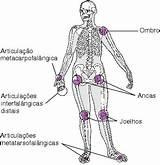 Tudo sobre artrose