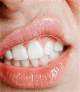 Recurrent Aphthous Stomatitis (RAS) Part 1 - Intelligent Dental  Ulcer Canker Sores