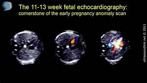 Fetal Echocardiography At 11-13 Weeks Of Pregnancy
