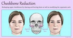 Cheekbone-reduction