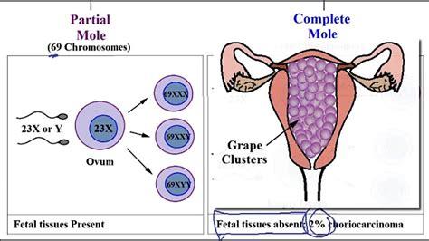 241 molar pregnancy partial and complete hydatidiform mole usmle step 1 usmle ace