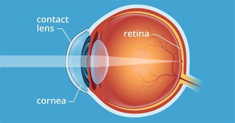 How Do Contact Lenses Work? - AllAboutVision.com