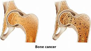 What is the cause of bone cancer? - Quora  Shoulder Pain Bone tumors