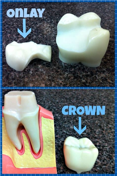 onlays  crowns wainright wassel dds