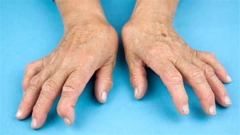 best treatment for rheumatoid arthritis early treatment best for rheumatoid arthritis stuff co nz