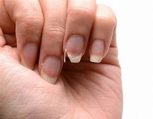 Comment Fonctionne La Prime A La Casse : comment r parer un ongle cass astuces de grand m re ~ Medecine-chirurgie-esthetiques.com Avis de Voitures