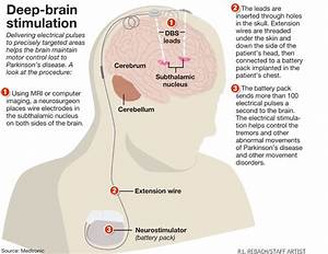 Deep Brain Stimulation  U2013 A Debate  U2013 Nus Neuroscience Student Interest Group