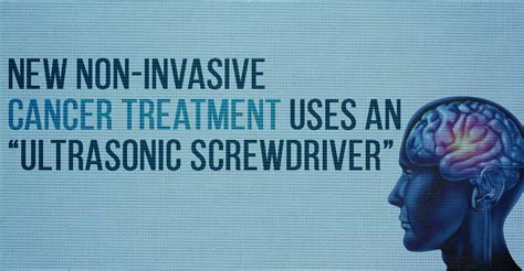 """New Noninvasive Cancer Treatment Uses An """"ultrasonic. Payroll And Hr Services Phones That Have Apps. American Equipment Finance Honda Ac Problems. Best Online Photography Schools. Eftps Business Phone Worksheet. Masters Of Education Abbreviation. Cbt Manual For Depression Public Storage Yelp. Travelers Long Term Care Insurance. Pod Moving And Storage Rates"""