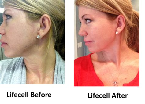 Lifecell Review - Does it Really Make Wrinkles Vanish?