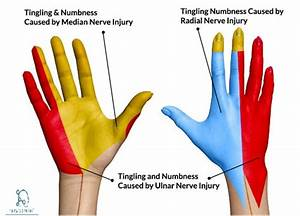 Ulnar Nerve Course Motor Sensory  U0026 Common Injuries  U00bb How
