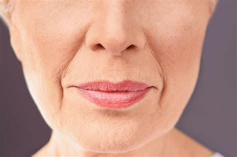 Marionette Line Treatment London - Hedox Clinic