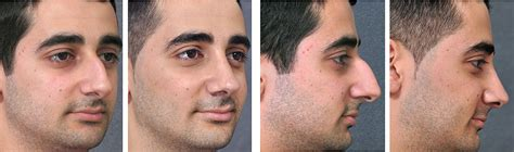 How Much Does A Nose Job Cost List By Country  Health 2. Safe Dry Carpet Cleaning Cost Of Cna Training. Accounting Software Online Demo. Does Dsl Require A Phone Line. Health Insurance Quotes Arizona. Medical Billing And Coding Online Programs. Technical Schools In Ohio Cpa Requirements Nj. Understanding Drug Abuse And Addiction. What Is An Endometrial Polyp Low Cost Auto