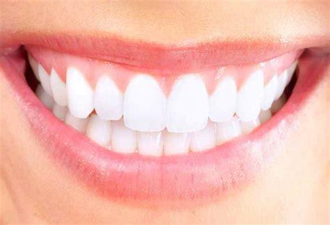 pourquoi blanchir ses dents chez un professionnel