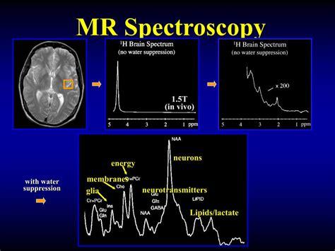 PPT - MR Spectroscopy PowerPoint Presentation, free ...