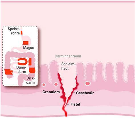 morbus crohn ursachen  symptoms treatment