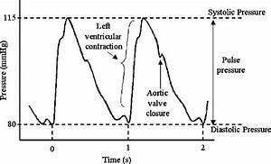 Diagram Of A Typical Arterial Blood Pressure Waveform