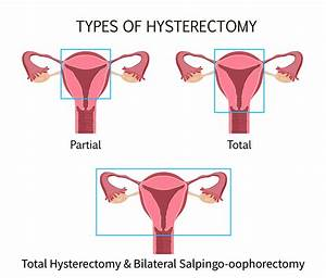 The Experts Weigh In  Is A Hysterectomy An Effective