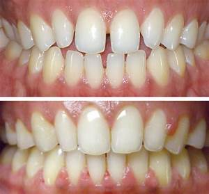 Before and Afters | Braces & Invisalign | Halberstadt ...
