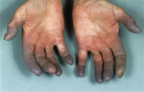 Diagnosis And Management Of Raynauds Phenomenon The Bmj